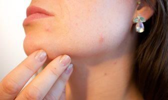 Fight against acne